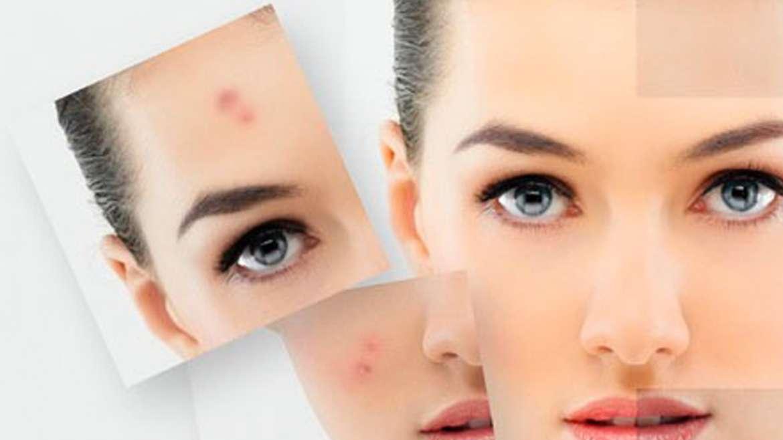 Догляд за проблемною шкірою
