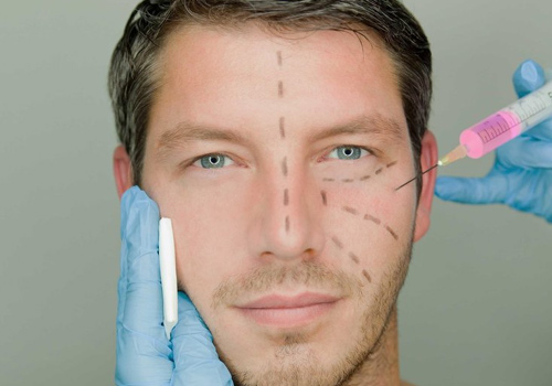 Пластична хірургія – чоловікам