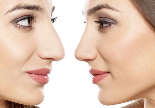 Rhinoplasty (Nose Reshaping)