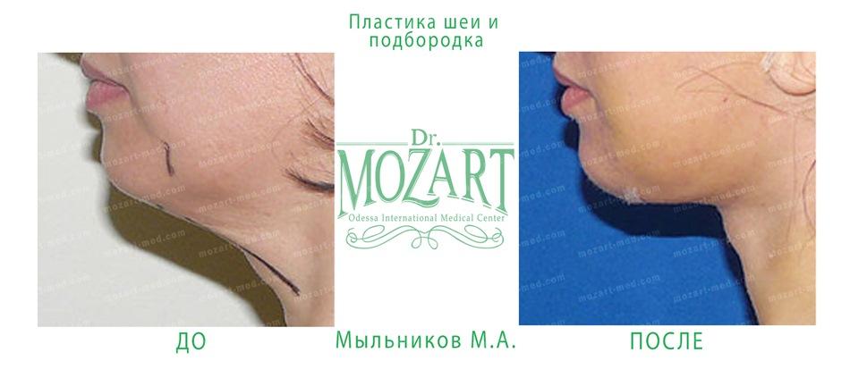 dr mozart medical center odessa ua