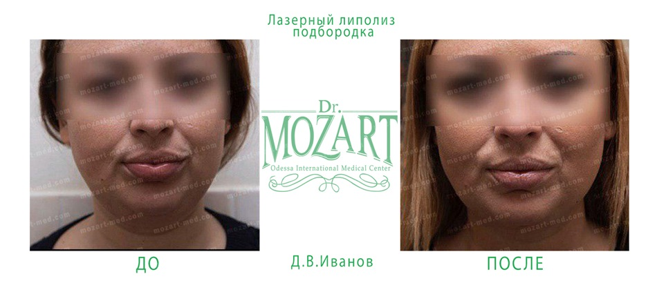 dr mozart medical center odessa ua