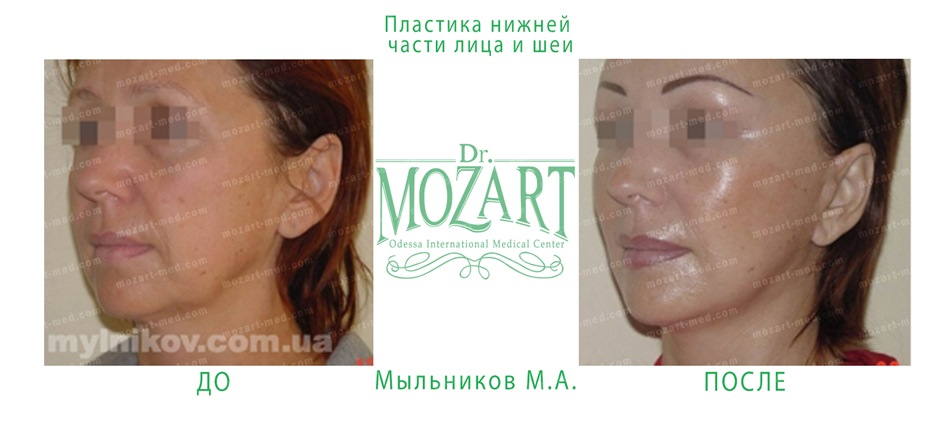 dr mozart medical center odessa