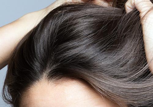 Нейродермит волосистой части головы