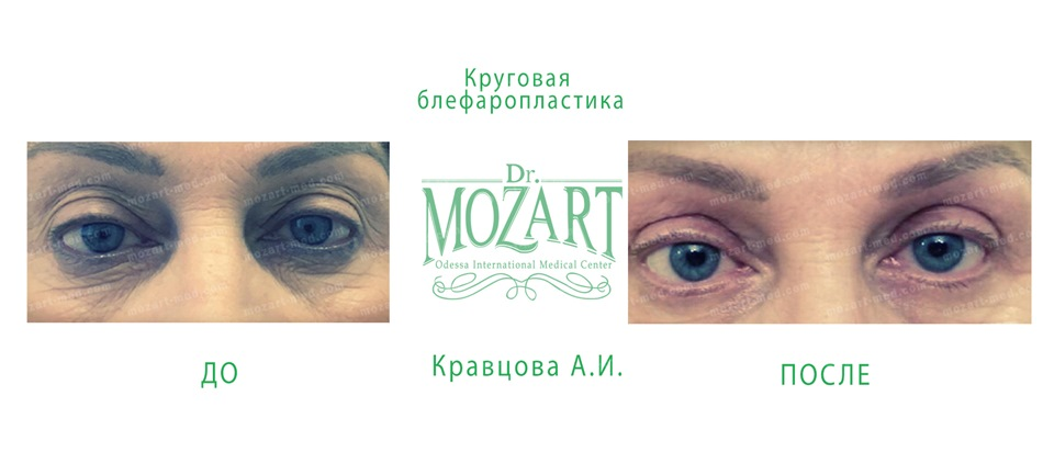 Dr. Mozart, Odessa International Medical Center