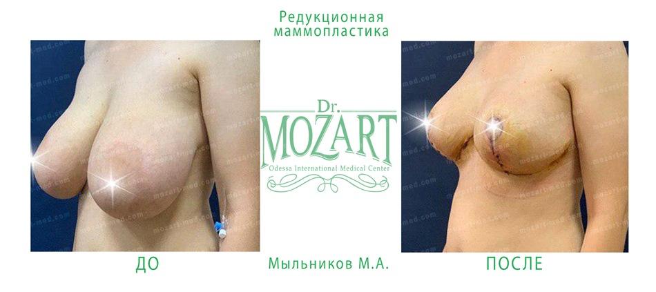 Mozart medical