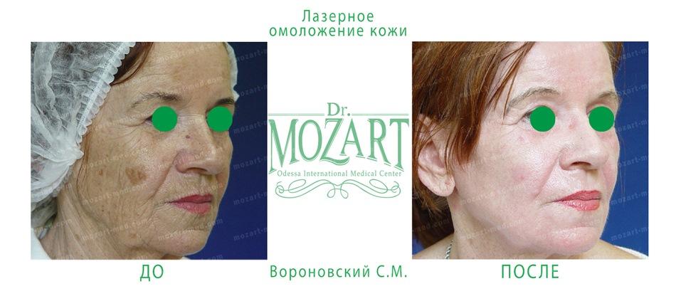 Mozart Med, Odessa