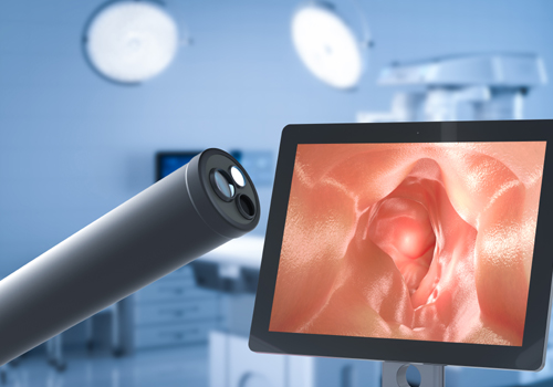 Endoscopic diagnosis